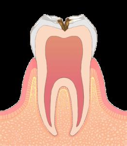 浅い虫歯のイラスト